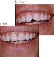 Cosmetic Dentist in Colorado