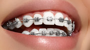 Orthodontist Colorado Springs
