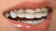 Looking for the Best Invisalign Retainers?